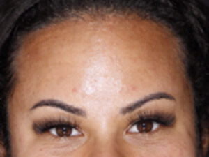 After Botox Forehead