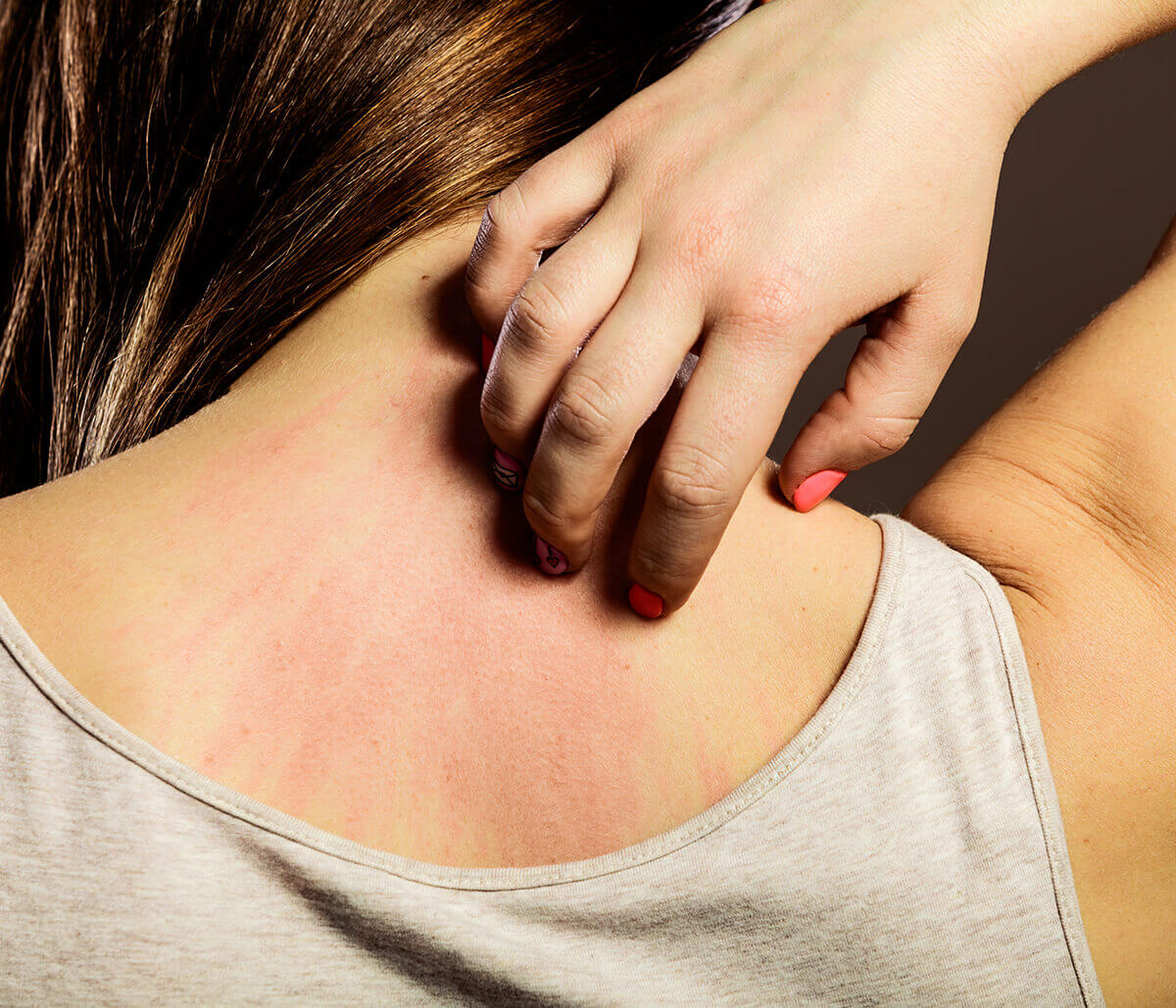 Find Relief for Psoriasis from a Board-certified Dermatologist in Hamilton Area