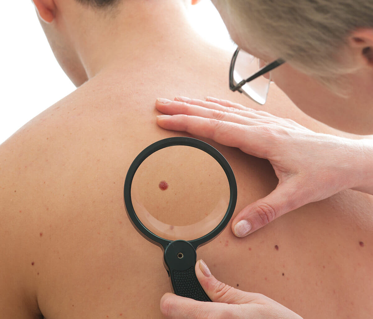 In Hamilton, ON Area Dermatologist Helps Patients Understand how Skin Cancer Affects the Body