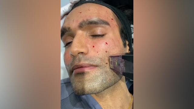 Morpheus 8 Skin Treatment