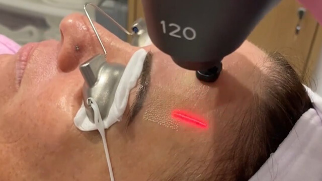 Reduce signs of aging and rejuvenate your skin with ECO2 laser treatment