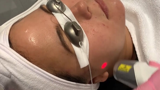 Laser Genesis is a safe, non-invasive method to treat skin concerns like redness, spots, and wrinkles and reduce pores
