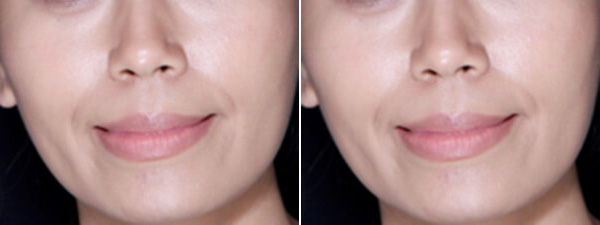 Before After Botox Lower face