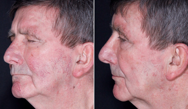 Before After Lumecca_Excel V treatment Hamilton, ON