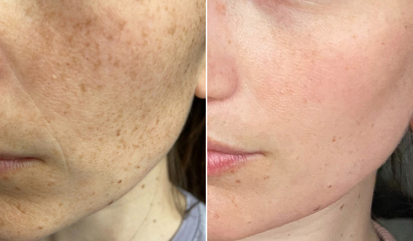 Before After Fraxel treatment Hamilton, ON