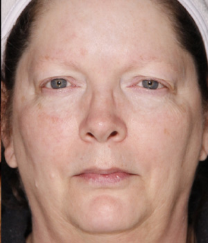 After IPL and Excel V full face treatment Hamilton, ON