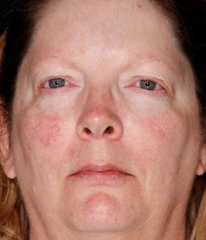 Before IPL and Excel V full face treatment Hamilton, ON