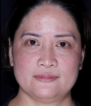 After Laser Genesis (6 Sessions) treatment Hamilton, ON