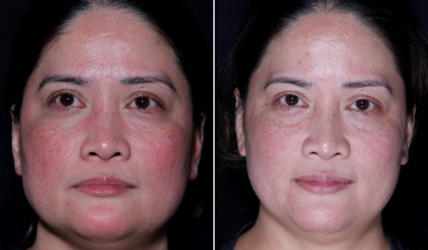 Before After Laser Genesis (6 Sessions) treatment Hamilton, ON