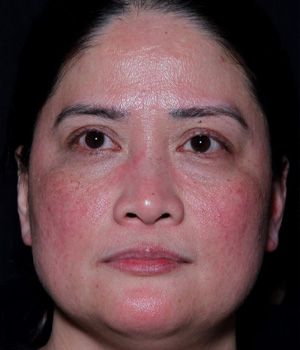 Before Laser Genesis (6 Sessions) treatment Hamilton, ON
