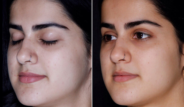 Before Skin Care Image - Dr. Rahul Shukla near Hamilton ON