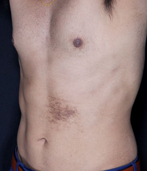 After Body contouring - multimodal approach Hamilton, ON