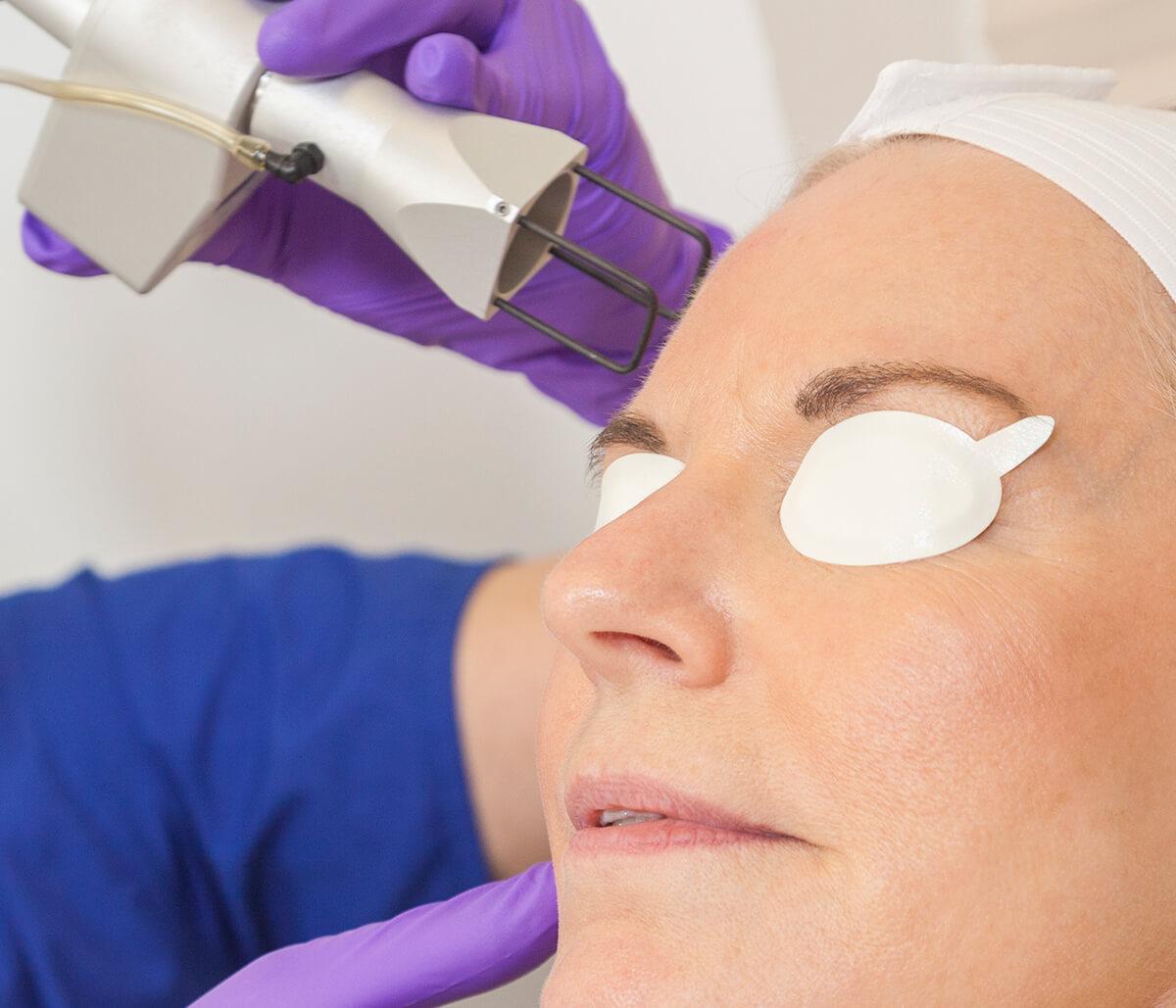 Eco2 Laser Skin Resurfacing in Hamilton ON Area