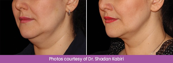 Before and After CoolSculpting Treatment Images
